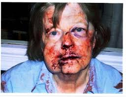 Image result for woman beaten