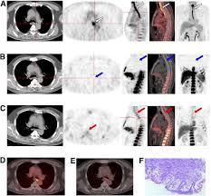 Image result for FLT-PET