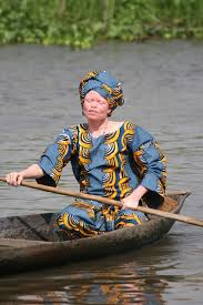 Image result for images for Albinos and Beyond the complexion campaign