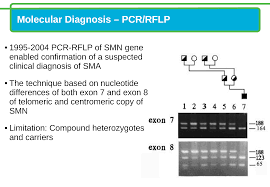 spinal muscular atrophy sma carrier and diagnostic testing