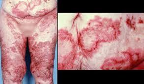Repasemos... 1 caso clínico por día - Página 30 Images?q=tbn:ANd9GcRvyVInk8zibt5DHgq71C2-LaIuFeN2sl-L3az1TybAmU7x0-sj