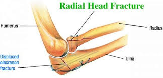 Image result for radial bone fracture