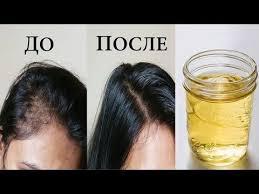 YouTube (с изображениями) | <b>Средства от выпадения волос</b> ...
