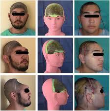<b>Low</b>-<b>cost customized</b> cranioplasty using a <b>3D</b> digital printing model ...