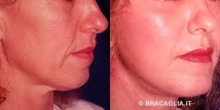 Roberto Bracaglia - chirurgia estetica lifting - 82_3066_DSCN0174_big