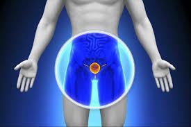 Cuando la próstata comienza a crecer
