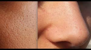 How I Shrank My <b>Pores</b> (How To Shrink <b>Pores</b> And Best Products To ...