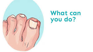 ingrown toenail treatment edmonton ingrown toenail treatment edmonton