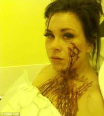 Scarred: Stacey Courage suffered 63 deep cuts to her face and chest after she was run off the road on her bike into a barbed wire fence - article-1281511-09C25C2A000005DC-74_468x519