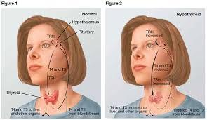 Resultado de imagem para hypothyroidism
