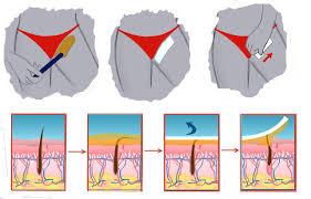 Крем для депиляции зоны глубокого бикини