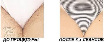 Какой крем для депиляции ног лучше