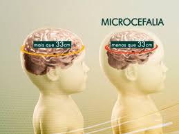 Resultado de imagem para MICROCEFALIA