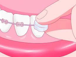<b>Ортодонтический воск</b> для <b>брекетов</b> — инструкция по применению