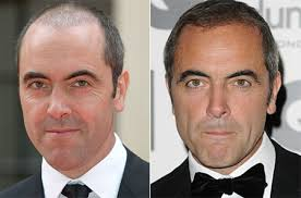 James' hair is clearly showing a new lease of life, a transformation which left very little doubt about what had occured. - james-nesbitt-hair-transplant