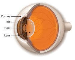 cornea surgery