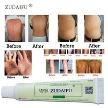 Buy for <b>eczema</b> and get free shipping on AliExpress.com