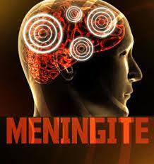 Resultado de imagem para Sesap descarta surto de meningite no RN