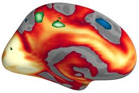 smaller-brain