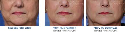 cosmetics archives mountcastle vein centers 2s ex fw beforeafter12 generic