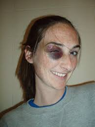 ... Black Eye Woman Knickols - deish-black-eye1