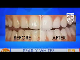 Zoom <b>professional</b> in chair teeth <b>whitening</b> on Today EXTRA ...