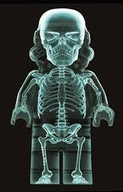 Resultado de imagen de radiografia