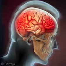 Traumatic Brain Injury Increases the Risk of Teen Substance Abuse