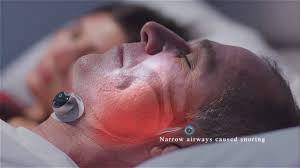 <b>Snore Circle</b> - NEW ANTI-SNORING DEVICE LAUNCHING SOON ...