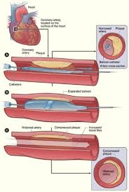 coronary artery disease research paper   hit mebel comcoronary artery disease news  research   news medical