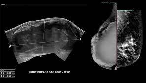 Image result for Information On Breast Imaging CME