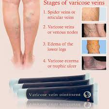 Chinese natural herbal medicine for <b>treating varicose</b> vascular ...