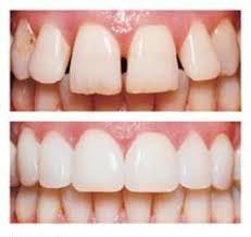 dental veneers for children