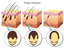 Андрогенное облысение у мужчин что это