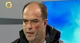 El diputado Julio Borges. | Imagen Globovisión. Twittear · Imprimir Menéame Enviar - julioborgesagredido