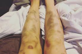 Here's Why You Actually Bruise So Easily