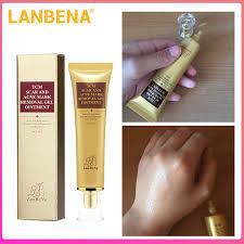 Online Shop <b>LANBENA Acne</b> Scar Stretch Marks Remover Cream ...