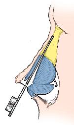Surgical Techniques | Becker Rhinoplasty | Philadelphia