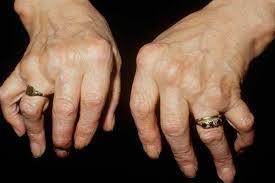 Image result for bone cancer