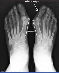 Resultado de imagem para artrite no pé