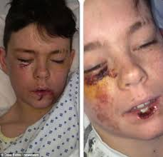 Kyle McSkimming underwent a three hour operation and required 33 stitches after he was attacked by his brother's shar-pei dog - article-2312107-196645F8000005DC-819_634x611