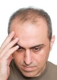 Облысение у мужчин лечение народными средствами отзывы