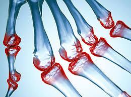 Resultado de imagen de artritis reumatoide