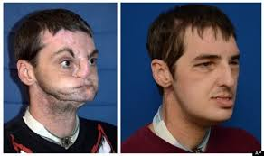 richard norris. Norris before his face transplant surgery (left) and 114 days post-surgery (right). (AP Photo/University of Maryland Medical Center)