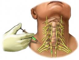 Peripheral Nerve Block Injection For Chronic Pain Not Necessary with Electroanalgesia