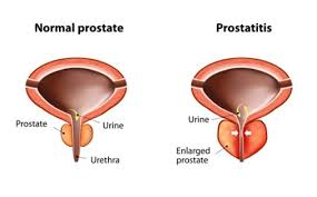 Image result for homeopathy images for prostate gland