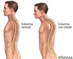 Resultado de imagen de espalda normal