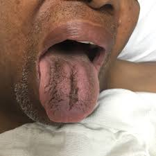 Abdominal Pain with Black Tongue - <b>JETem</b>