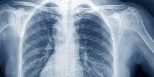 Radiology Nursing Jobs   American Traveler
