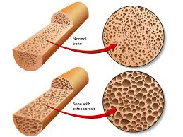 Image result for osteoporosis in africa